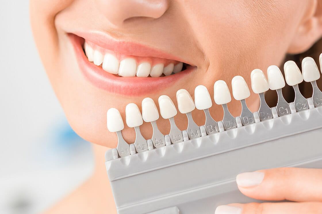Dental_Crowns_Bridges
