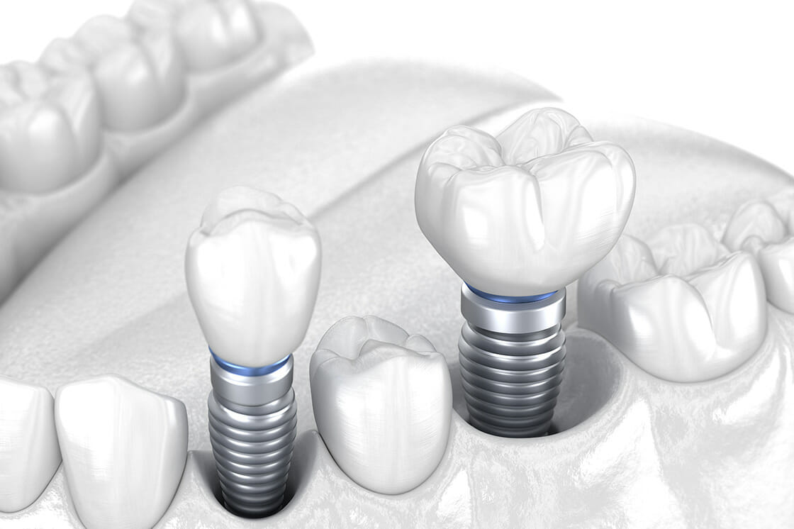 Implant_Crowns_Bridges