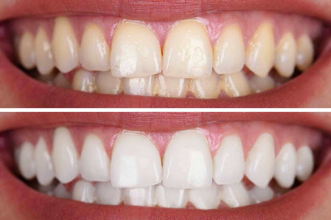 Teeth_Whitening_pic