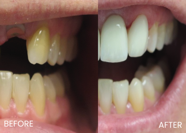 dental crown and veneers